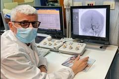 Al Policlinico Riuniti di Foggia delicato intervento con trattamento mininvasivo neuroradiologico - interventistico